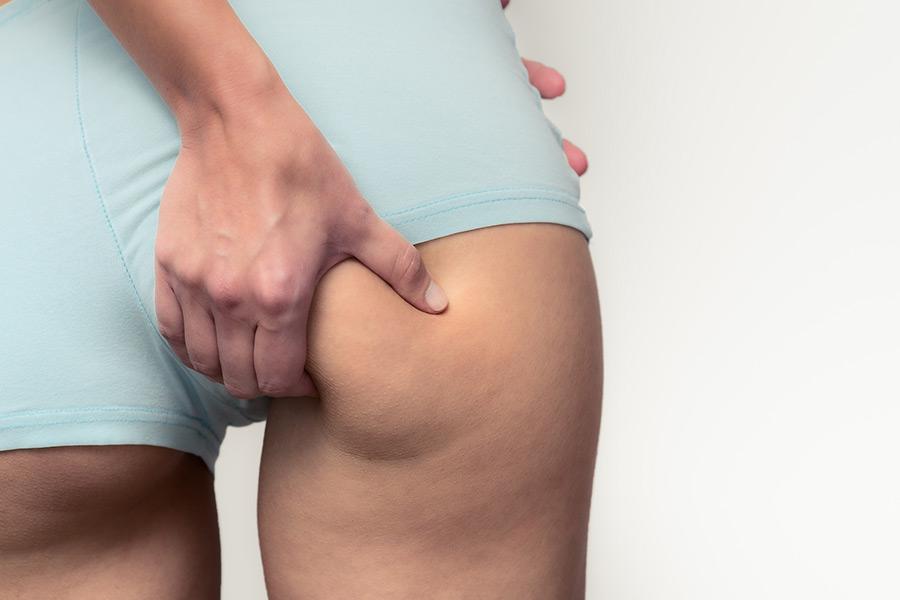 Fettabsaugung | Praxisklinik Dr. Hasert Berlin-Mitte | Hautarzt