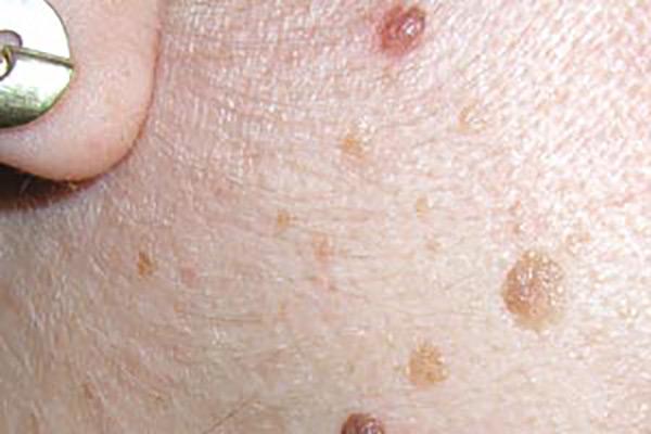 Entfernung von gutartigen Hautveränderungen - Praxisklinik Dr. Hasert Berlin - Hautarzt